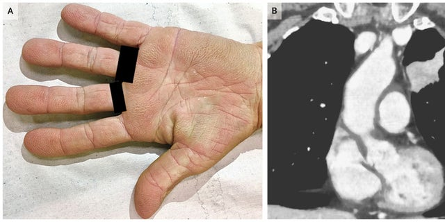 """The woman's palms had a """"velvety"""" appearance due to a rare condition linked to some cancers."""