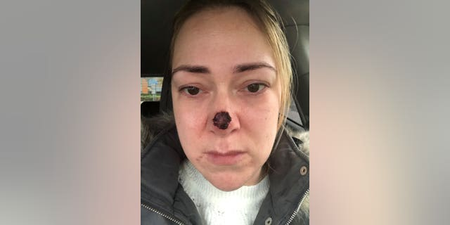 She had the sponge removed today, and said while her confidence has taken a hit she wants to share her story in a bid to warn others about the dangers of skin cancer.