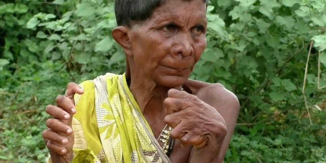 Kumar Nayak, 63, from the Ganjam district in Odisha, India, said her family was too poor to seek treatment.