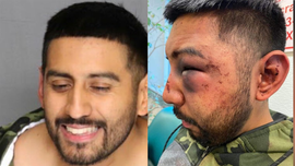 California man accused of drunken attack on jail guards during arrest claims he was victim of 'racist' beating: reports