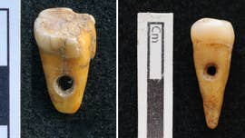 Grisly discovery: Human teeth were used as prehistoric jewelry