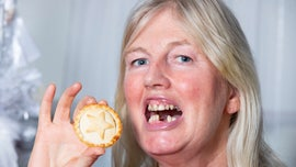 Woman wants 2 front teeth for Christmas after swallowing dentures while eating mince pie