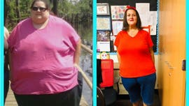 California woman loses 350 pounds after gastric surgery, says she once ate 10,000 calories a day