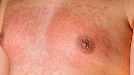 Scarlet fever outbreak in UK sickens hundreds: report