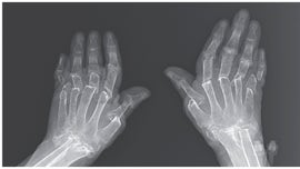 Woman's arthritis causes bones to dissolve in case of 'telescoping fingers,' report finds