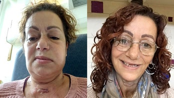 Woman's jaw reconstructed using part of shoulder following cancer diagnosis