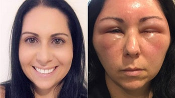 Woman's allergic reaction to hair dye causes severe swelling in face, head