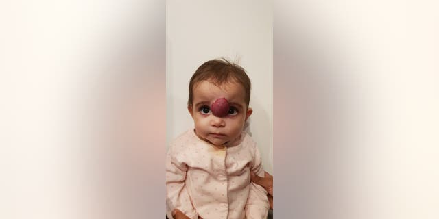 Noor, pictured before her surgery, began developing what looked like a skin irritation just a few weeks after her birth.