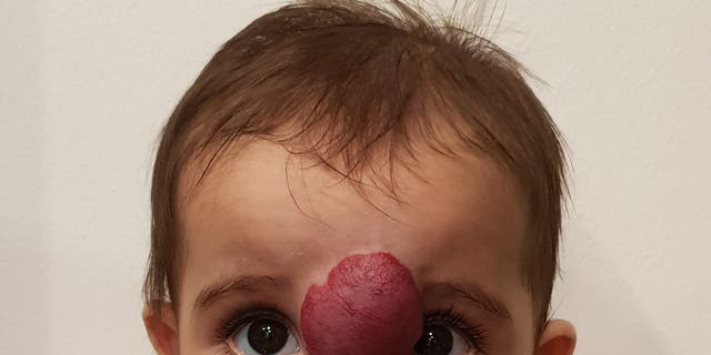 Noor, graphic before her surgery, began building what looked like a skin exasperation only a few weeks after her birth.