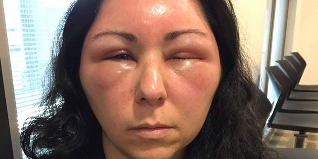Within days of using hair dye, her head had swelled so much that she couldn't open her eyes.