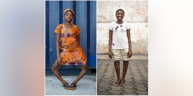 Valerie, pictured left before her surgery and right after being released from the hospital, now plans to return to school.