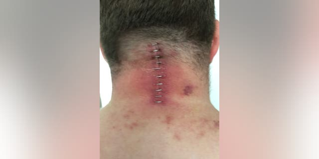 Stuart Clegg following a surgery to treat the nerve damage in his neck.