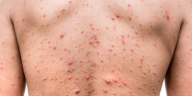 The outbreak of chickenpox occurred at an elementary school in Wisconsin.