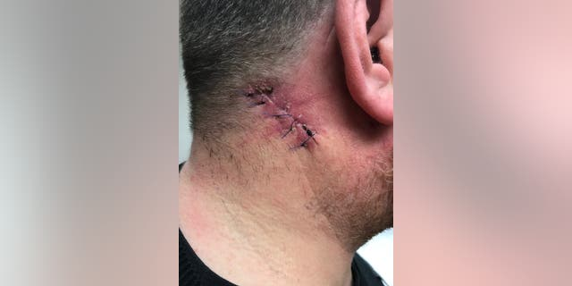 Another photo of Stuart Clegg post-op.