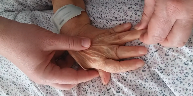 A doctor treating the woman gently pulled her finger tips to temporarily straighten her fingers.