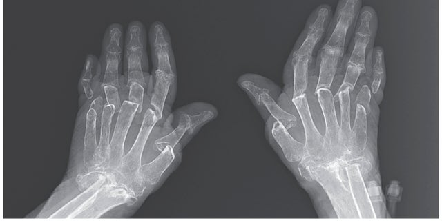 An X-ray of the woman's hands.