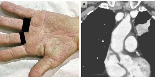 """The woman's palms had a """"velvety"""" appearance due to a rare condition."""