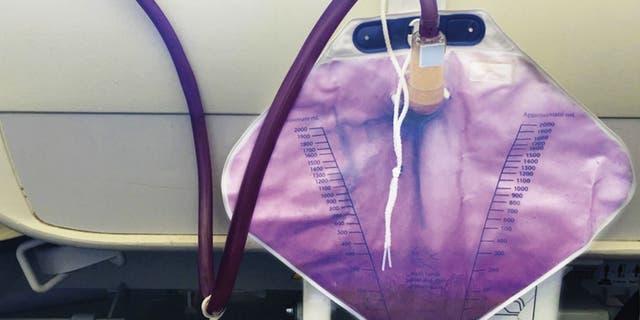 The woman's purple urine.