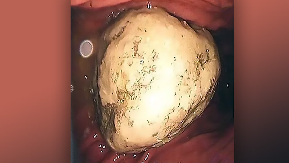 Female Develops 2-inch Bezoar In Stomach After Diet Of Crab Meat And Persimmons