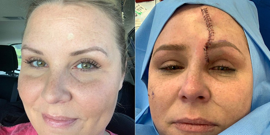 Kentucky Mom Diagnosed With Skin Cancer Left With Massive Scar After Using Tanning Beds For Years Fox News