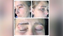 Michigan woman claims microblading left her with infected blisters under eyebrows