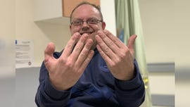 Cobbler's thumb cut off during shoe accident, replaced by his big toe