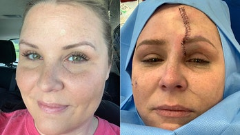 Kentucky mom diagnosed with skin cancer, left with massive scar after using tanning beds for years