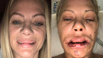 Connecticut mom 'feels ugly and unattractive' after plastic surgeries left her with lumpy lips, misshapen nose