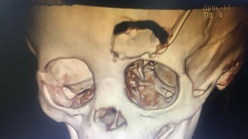 Toddler fractures skull after pencil impales eye, report says