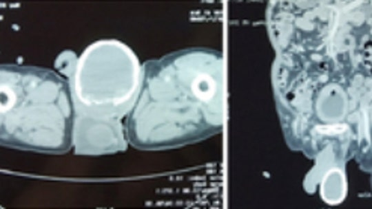Man's swollen, calcified testicle caused by parasitic worm infection: case report