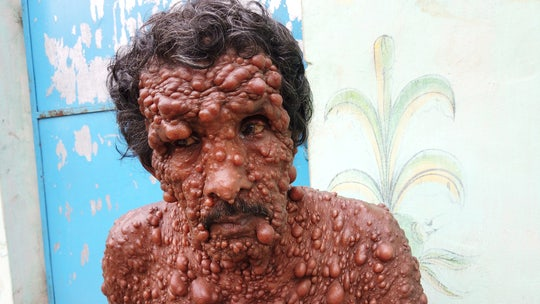 Man covered in thousands of tumors says he's treated 'worse than stray animal'