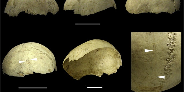 Human skulls were systematically manufactured as recently as the Bronze Age to make pots and drinking cups, new research shows. Meticulous extraction of the scalp and flesh was used to clean the skulls and turn them into bowls, personalised decorations and war trophies as recently as 4,000 years ago. (Credit: SWNS)