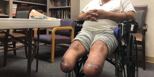 Jerry Holliman shows where doctors had to amputate his legs below the knee. (Fox News/Charles Watson)