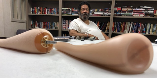 Holliman shows the sleeves that he would wear with his prosthetic legs. (Fox News/Charles Watson)