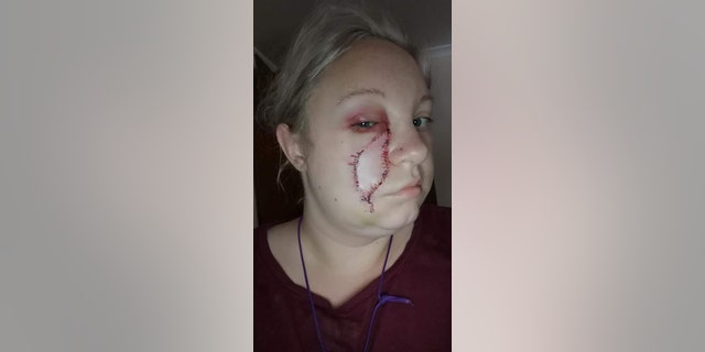 Thorell, pictured after her Mohs surgery, said she is thankful to be cancer-free but urges others to be vigilant about changes to their skin.