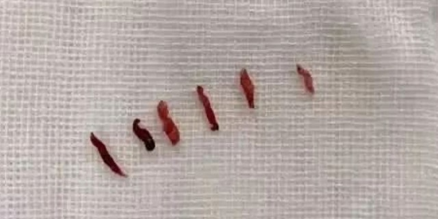 Above are the six clots that were blocking the patient's artery.