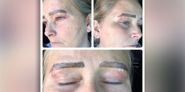 Shannon Bozell claims she went back to a salon where she had a microblading procedure to have her eyebrows reshaped, but left with blisters and scarring.