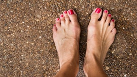 What causes a bunion and do you need surgery to fix it?