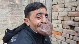 Indian man born with massive facial tumor says he's nearly 'exhausted my savings' in search for cure