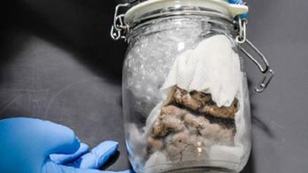 Human brain specimen seized from Canada-based shipment by US Customs officers