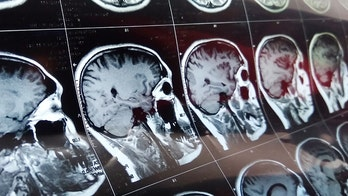 Mysterious brain disease 'cluster' under investigation in Canada