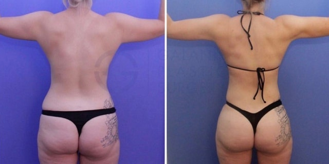 "A ""before"" image (left) and an ""after"" image (right) of a Brazilian butt lift."