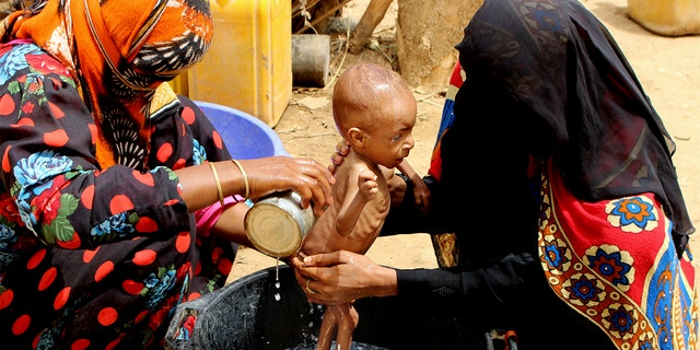 In this Aug. 25, 2018 file photo, a severely malnourished infant is bathed in a bucket in Aslam, Hajjah, Yemen. (AP Photo/Hammadi Issa, File)