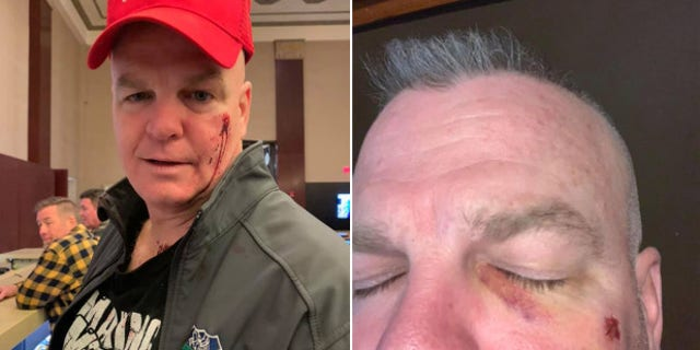 Westlake Legal Group dann Retired NYPD cop says he was assaulted in Nashville bar over 'Make 50 Great Again' birthday hat: report fox-news/us/us-regions/southeast/tennessee fox-news/us/crime/police-and-law-enforcement fox-news/us/crime fox-news/travel/vacation-destinations/new-york-city fox news fnc/us fnc Dom Calicchio article 67b0362b-423d-59b0-be47-9cf4fa64c934