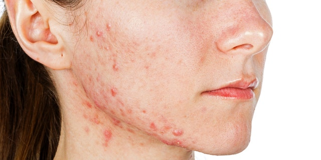 Teens and adults alike can be affected by acne.