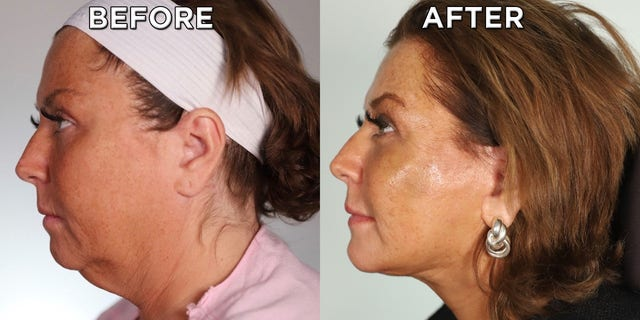 A before and after photo shows Abby Lee Miller's results from her face and neck lift.