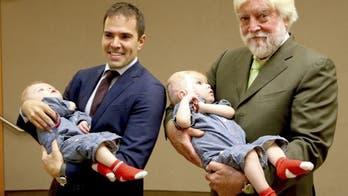 Coronavirus kills New York neurosurgeon who separated conjoined twins