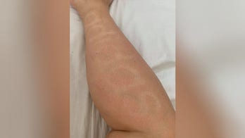 Woman accidentally tans company logo onto her leg during coronavirus lockdown