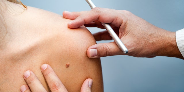 It's always best to consult a dermatologist if you have a skin tag or mole you would like removed.