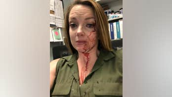California retail employee posts photo of her bloody face after alleged customer attack